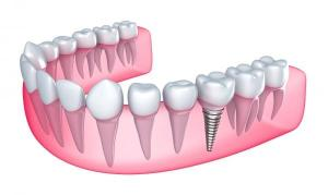 Dental Implants in Turkey – Antalya Have you already decided you are going to Turkey, Antaly for your holidays and also for your dental implant treatment? Great decision! Waiting for you in our dental center Dental Esthetic Antalya. By offering you all types of Dental Implnts plus Guided Implant (Implant without Surgery), using the most famous international A grade brands and materials, having the most advanced technological devices, and following the latest modern dental methods. By paying our utmost attention to all our patients, caring not to waste the time of their holiday, and having an excellent dental treatmetn with very cheap prices, Dental Ethetic Antalya has created a new concept for the meaning of your dental holidays.