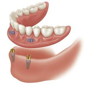Lower Dentures attached to Dental Implants One way to stabilize a lower denture is to place two dental implants in the jaw covered with a ball and over attachement. The denture itself is made of two rubber hole rings that are attached to the under side and they are replacable. These hole rings snap around the ball attachement which are around the implants and dose provide to secure the denture. Dental Esthetic Antalya provides this kind of treatment to the patients. This kind of dental treatment greatly improves the stability of the lose of a lower denture.