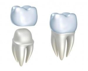 Cerec Dental Crwons in One Day at Dental Esthetic Antalya CEREC Dental Crowns are made of a solid block of ceramic or resin materials. This type of dental crown is made right in our dental clinic, Dental Esthetic Antalya, and during a single visit. This type of dental crown uses computer technology to take a picture of the tooth that will receive the crown, as well as the surrounding teeth. The dental crown is made from a single block of material, it is considerably stronger than many other types of dental crowns. Dental Esthetic Antalya offers dental guarantees for all kinds of dental treatments, and for the Cerec Dental Crowns we offer 6 years guarantee.