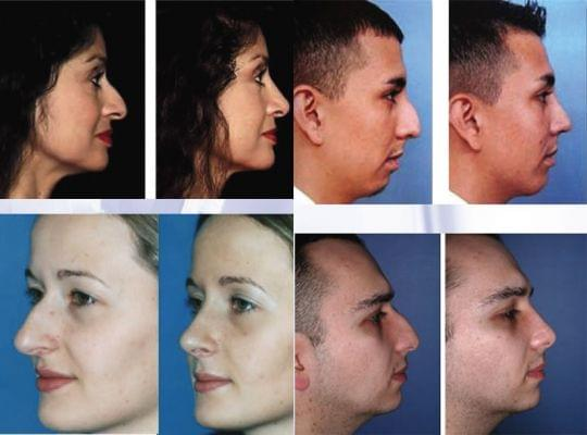RHINOPLASTY: PLASTIC and RECONSTRUCTIVE SURGERY