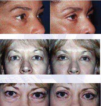 FACE REJUVENATION - Plastic and Reconstructive Surgery