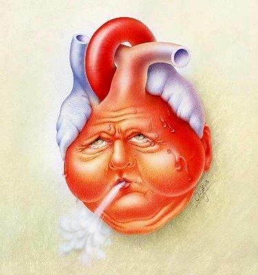 Kalp Yetmezliğinde EECP Tedavisi