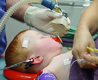 Çocuklarda hangi anestezi yönteminin uygun olduğuna nasıl karar verilir?