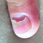 "​Nail Distruction Due To ""Print Correction Fluid"""