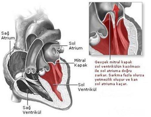 Doğumsal Kalp Hastalıkları