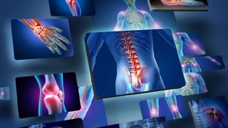 Onkolojik Rehabilitasyon