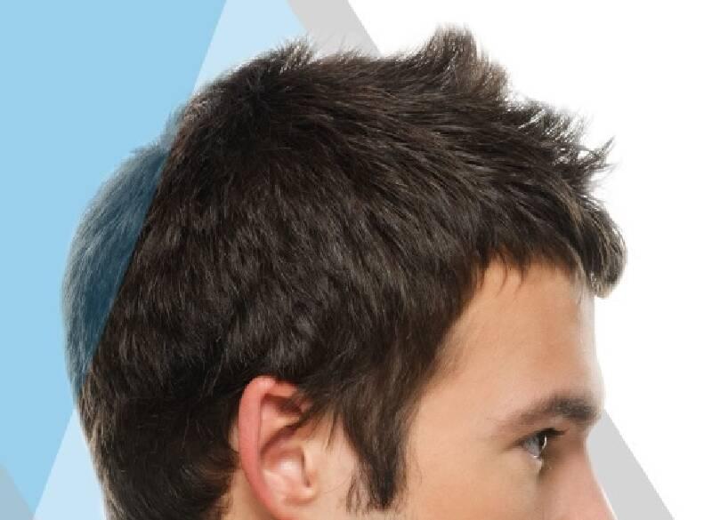 لا تصرف اموالك لكي تحصل لنتيجة سيئة في زراعة الشعر.