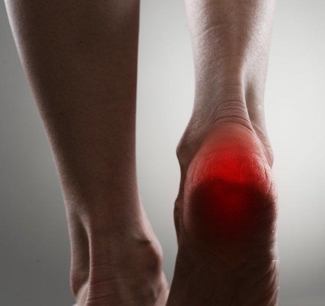 Topuk Dikeni; ESWT (Şok Dalga) ile 5 Seansta Tedavi Edilebiliyor!