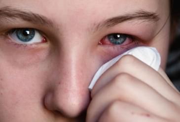 Kışın göz nezlesinden (konjonktivit) nasıl korunabiliriz?