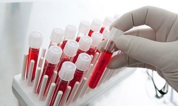 Hemofili Nedir ?