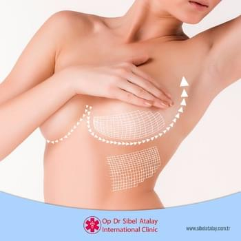 Breast Enlargement with FDA approved implant