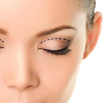Eyebrow Lifting with Surgery