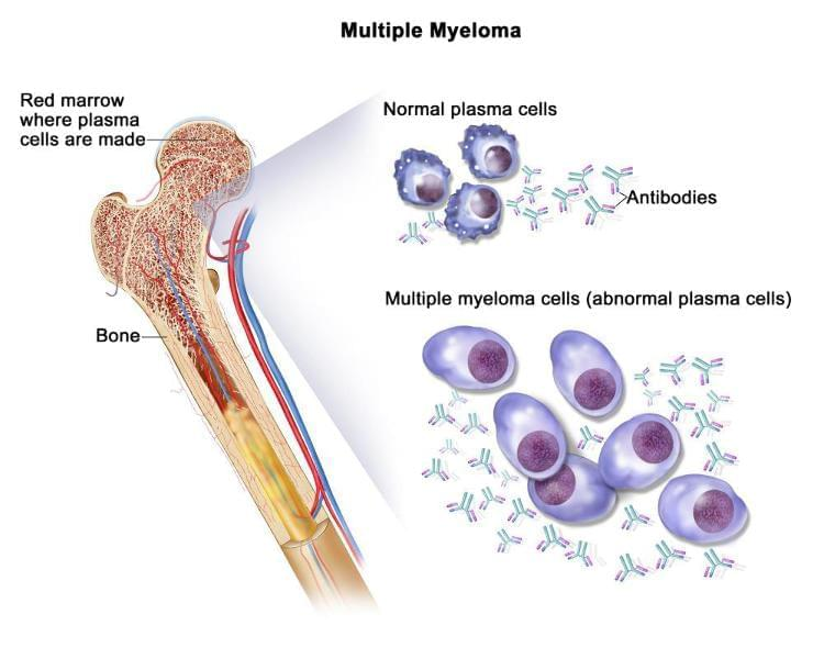 MULTİPLE MYELOMA