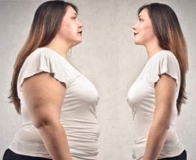 Aşırı Şişmanlık (Morbid Obezite)