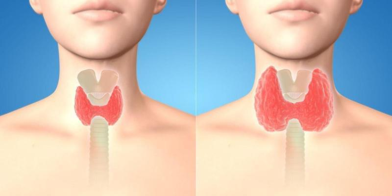 Tiroid cerrahisi