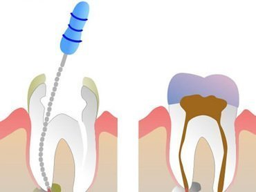 Root Treatment