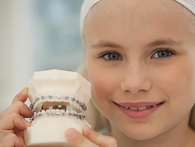 Right Age for Orthodontics
