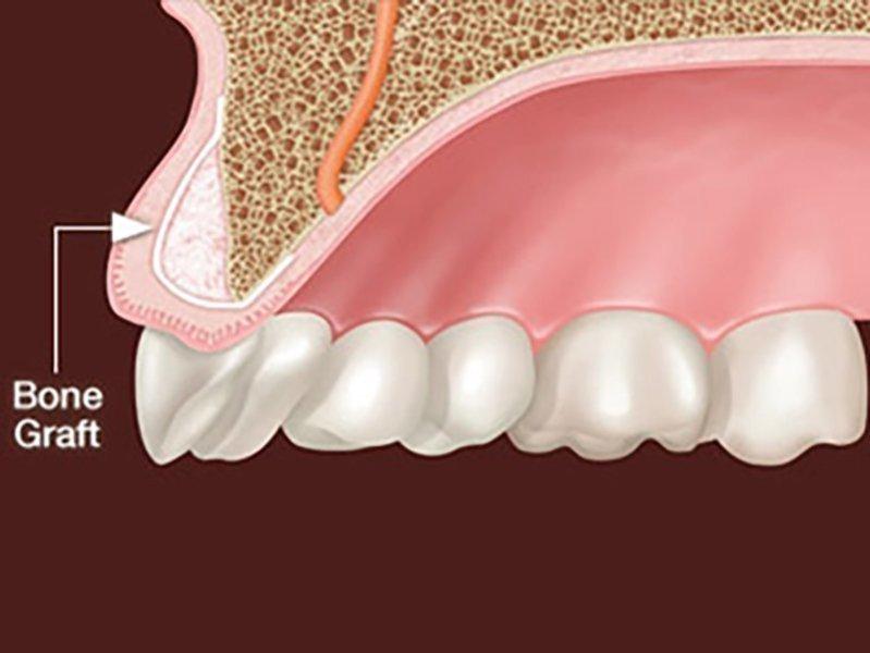 Kemik Greftleri (Bone Greft)