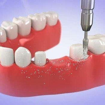 Brücken und Zahnersatz
