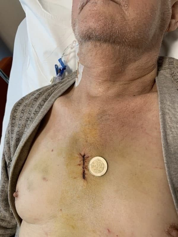 Mini Bentall Surgery (3,2 cm)