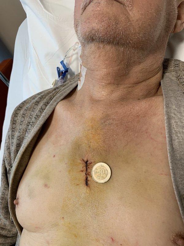 Mini Bentall Ameliyatı (3,2 cm)