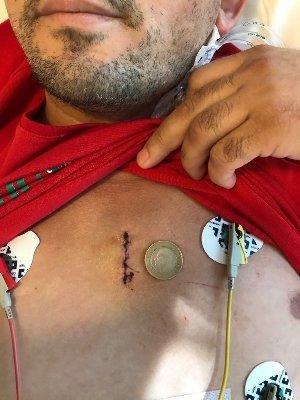 بنتال- جراحة جذر الأورطي جرح صغير