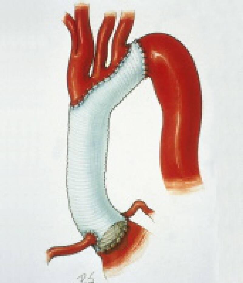 Aortenbogenersatz bei milder Hypothermie (30° Celsius)