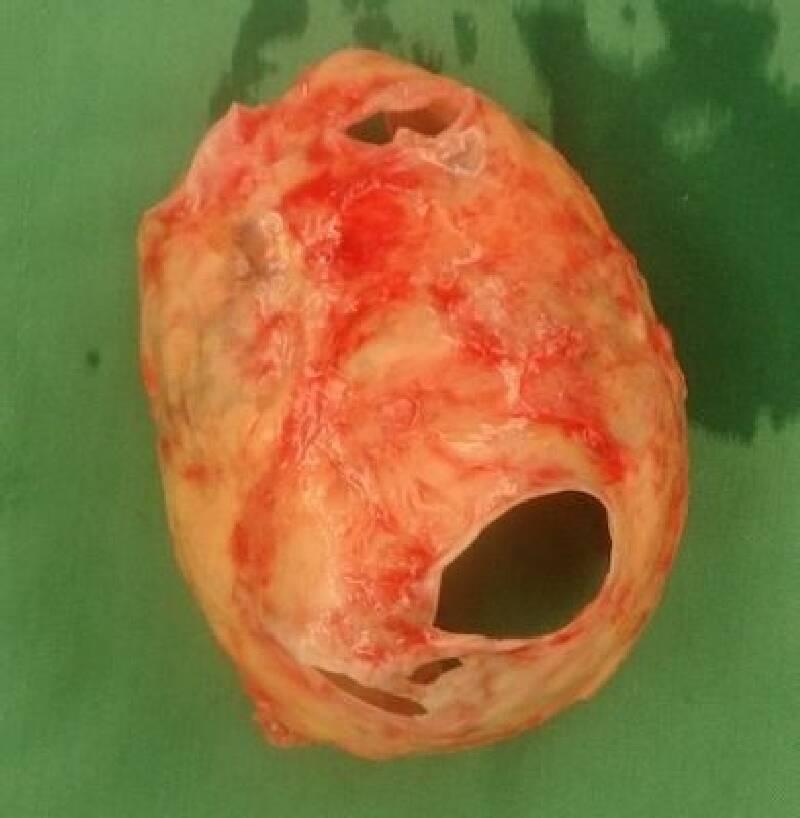 Extrem Sol Atrial Kalsifikasyon (Kalp Kulakçığı Taşlaşması)