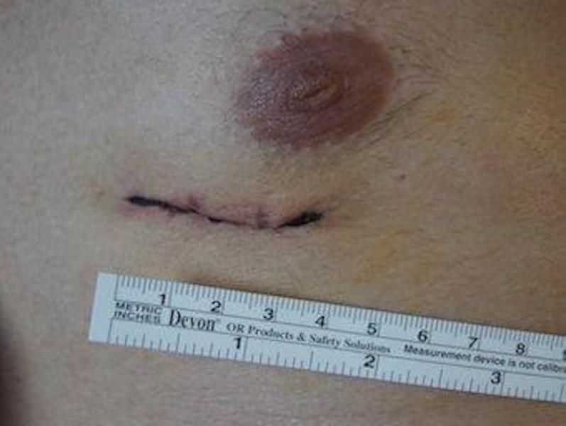 CLOSING CONGENITAL HEART HOLE WITH SMALL INCISION (CLOSED METHOD)