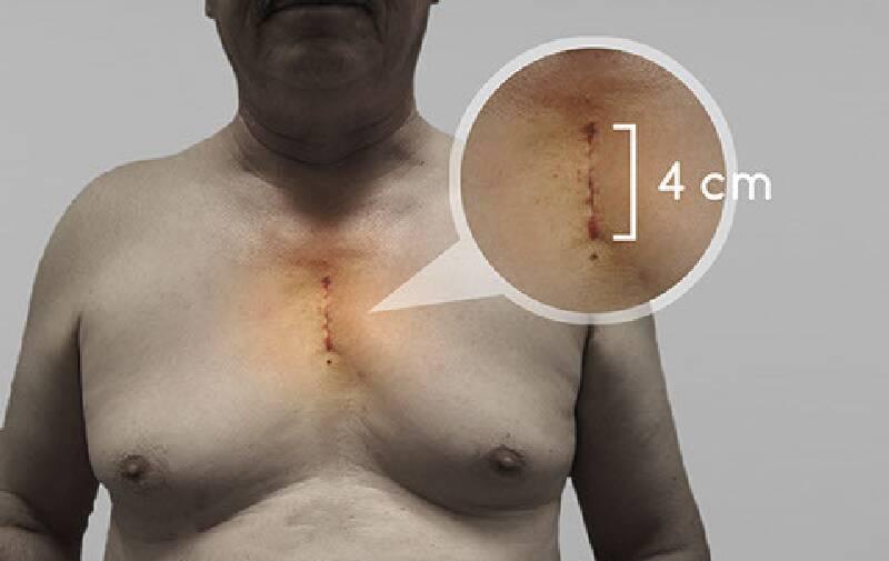 Kalp Kapak Ameliyatları