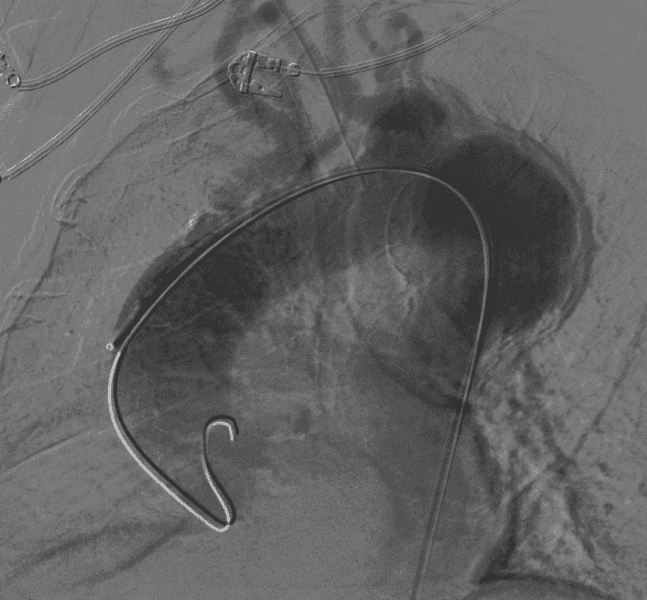 Endovascular Aortic Graft Implantation