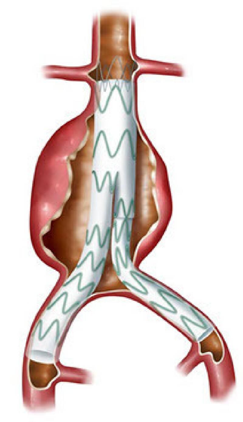 """""""Kapalı"""" Yöntem ile Aort Anevrizması Endovasküler Stent Tedavisi """"EVAR"""" ve """"TEVAR"""""""