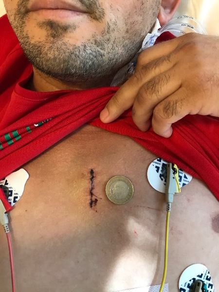 Bentall–Aortic Root Surgery with Small Incision