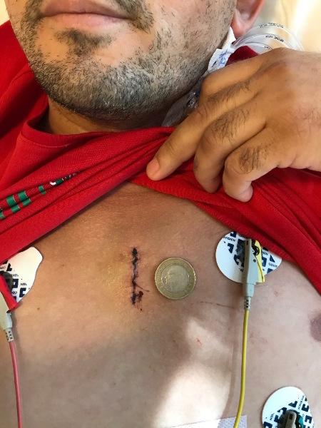 """Bental - Aort Kökü Ameliyatı Küçük Kesi """"Koltuk Altından Kalp Ameliyatı"""""""