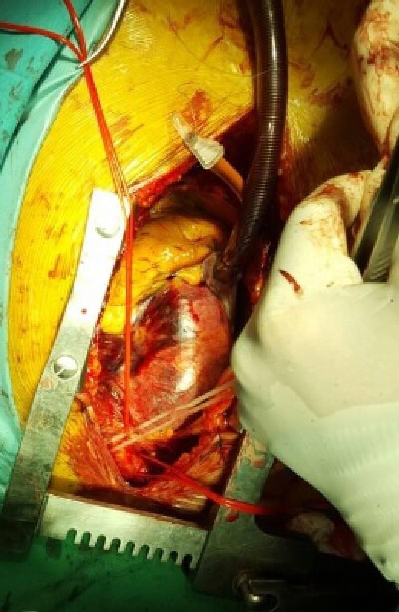 Aort Anevrizması (Genişlemesi) Nedir?