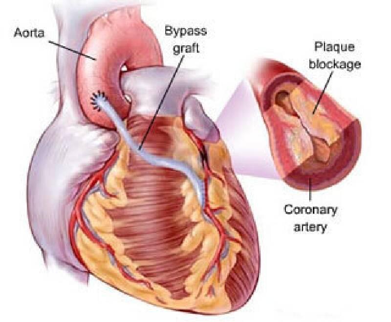 Stent mi yoksa Baypass mı ? Kalp Krizinden nasıl korunalım ?