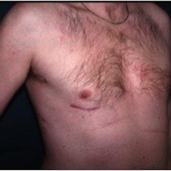 Mitral Kapak Tamiri, Kapalı Ameliyat (Koltuk Altından Kalp Ameliyatı) Yöntemi
