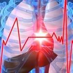 Kalp Krizi nedir? Nasıl Meydana Gelir?