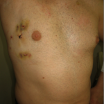 Entfernung eines gutartigen Tumors im Herzen bei geschlossenem Brustkorb
