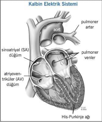 Atriyal Fibrilasyon ve Ablasyon Tedavisi Nedir ?