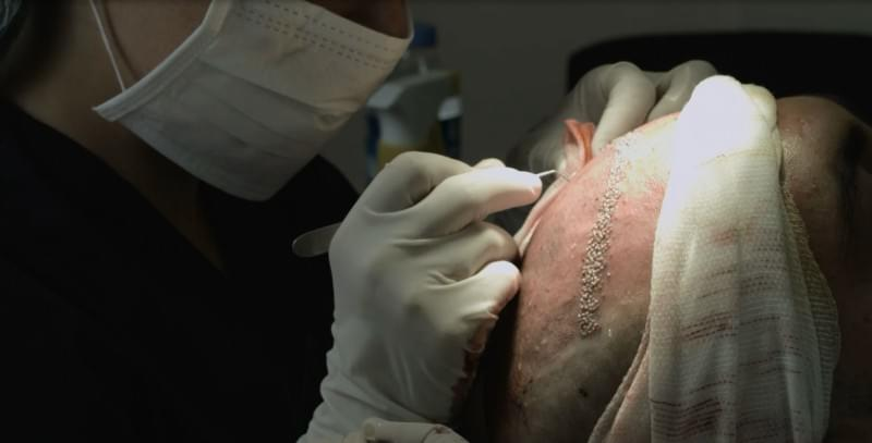Hair Transplantation in 3 Days